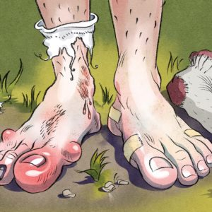 Illustration of Itching On The Toes Until It Fester And Bleeds?