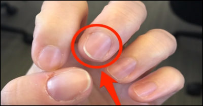 Illustration of Wavy Nails And There Are Faint Black Lines?