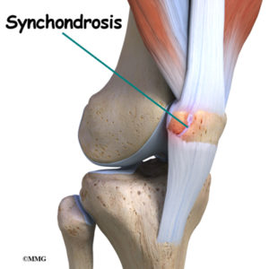 Illustration of The Knee Bone Feels Displaced, Protrudes And Feels Painful To The Touch?