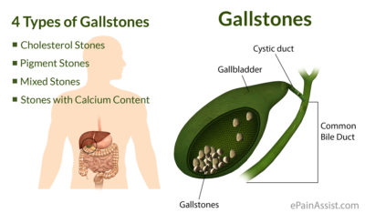 Illustration of Signs And Symptoms Of Gallstones?