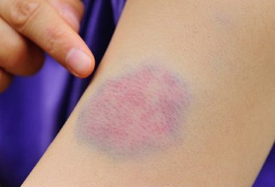 Illustration of The Cause Of Appearing Red Spots And Greenish Bruises Have Been 2 Days On The Hands, Feet And Chest?