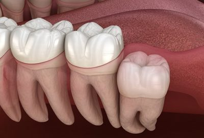 Illustration of What Are The Signs Of Molars Appear After Being Removed At The Age Of 18 Years?