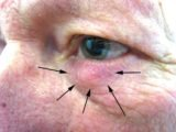A Lump In The Inner Eye Bag, Itchy And Red?