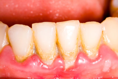 Illustration of Gums Have Holes In Them After They Have Been Pulled Out?