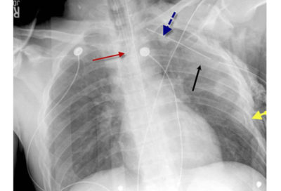 Illustration of Chest Pain Due To Collision And Results Of Chest Radiograph?