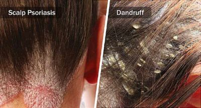 Illustration of The Scalp Looks Like Dandruff And Itchy Red Skin On The Body?