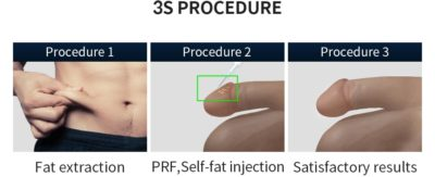 Illustration of Is It Safe To Do Penis Enlargement Surgery?