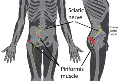 Illustration of Pain In The Joints Between The Thighs And Buttocks Is The Nerve Pinched?