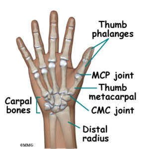 Illustration of How To Deal With The Joint Of The Thumb Bone That Is Shifting?