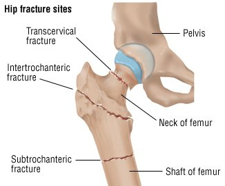 Illustration of The Knee Can Not Be Bent After Experiencing A Fracture In The Thigh?
