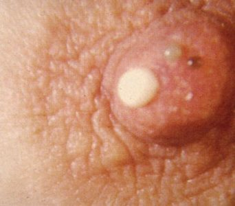 Illustration of Clear And Sticky Discharge In The Breast?