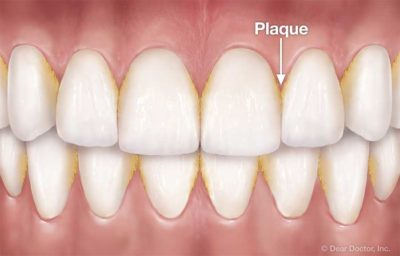Illustration of Discomfort In The Tooth Gap After Using Dental Floss?