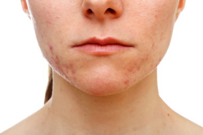 Illustration of Spots Appear On The Face After Using The Cream?