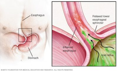 Illustration of Are The Symptoms Of Bile Reflux The Same As The Symptoms Of GERD And What Is The Solution?