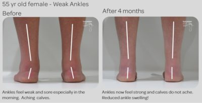 Illustration of Feet Aching And Weak.?