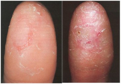Illustration of Skin Disorders That Cause Changes In Fingerprints?