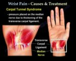 Overcoming Pain Due To Injury To The Prolonged Right Wrist?