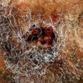 Overcoming Infection Wounds Caused By Prickles?