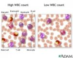 Causes And Overcome Increased Blood Leukocyte Levels?