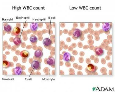 Illustration of Causes And Overcome Increased Blood Leukocyte Levels?