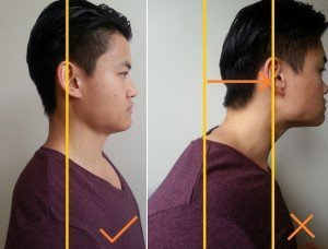 Illustration of The Sloping Neck Tends To One Side?