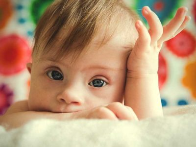 Illustration of Signs Of Down Syndrome In Infants Aged 5 Months?