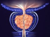 Can Consumption Of Drugs That Overcome Prostate Enlargement In Patients With GERD?