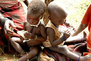 Illustration of Overcoming Malnutrition In Children Aged 1 Year?