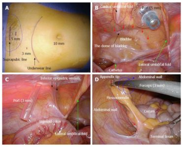 Illustration of Influence After Appendectomy In Patients With Appendicitis?