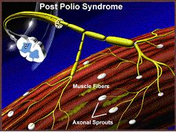 Illustration of Definition Of Post-polio Syndrome?