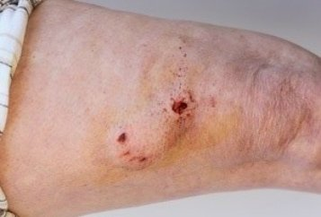 Illustration of Does A Cut On The Leg From Stepping On A Knife Just Use Bandages Instead?