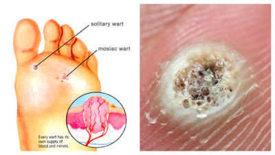 Illustration of Is It True That Warts Grow Because There Are Parasites And How To Eliminate Them?