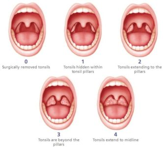 Illustration of How To Deal With Stage 3 Tonsils?