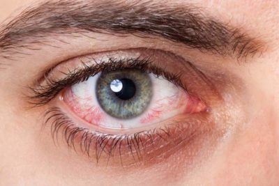 Illustration of Eye Pain And Dripping Blood?