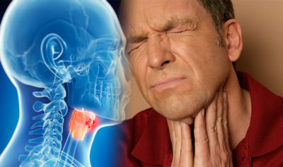 Illustration of Does Strep Throat Can Cause Throat Cancer?