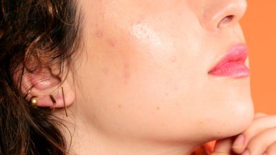 Illustration of Why Is The Pimple On The Right Cheek So Big, Red And Inflamed?