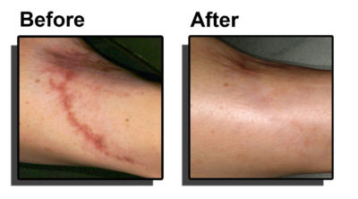 Illustration of Treatment For Surgical Scars?