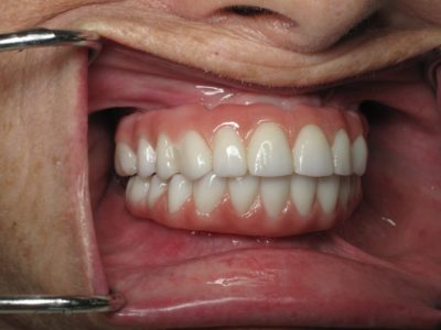Illustration of The Timeframe For The Installation Of Permanent Dentures After Oral Surgery?