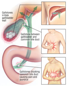 Illustration of The Size Of The Gallstones Again Enlarges?