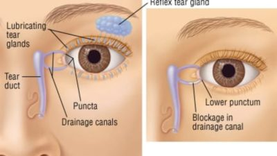 Illustration of How Do You Distinguish Between Tears And Infections Of The Hymen?