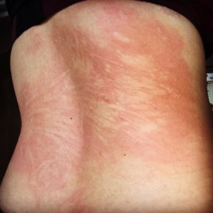 Illustration of Itchy Skin Easily Itches To Redness?