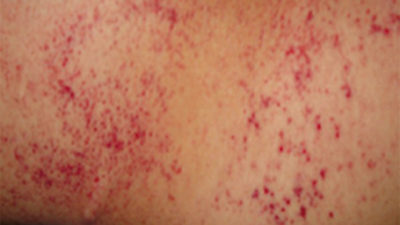 Illustration of Itching Is Red Spots And Leaves Black Marks On The Skin.?