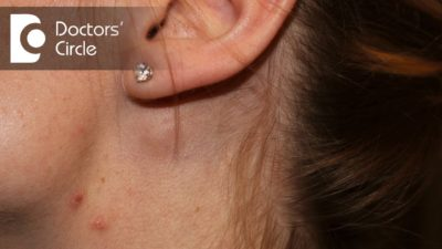 Illustration of Swelling In The Neck Near The Ear.?