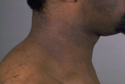 Illustration of Brown Patches On The Chest.?