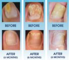 Treatment Of Fungal Infections In The Toenails?