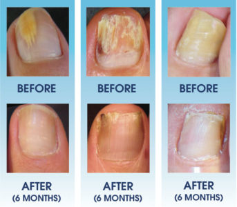 Illustration of Treatment Of Fungal Infections In The Toenails?