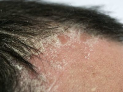 Illustration of Causes Severe Hair Loss And Dry Itchy Scalp?