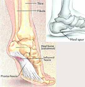 Illustration of The Heel Of The Leg Has A Hole Due To Being Pierced By A Stone?