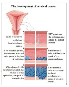 Illustration of Test To Detect The Risk Of Changes In The Cervix?