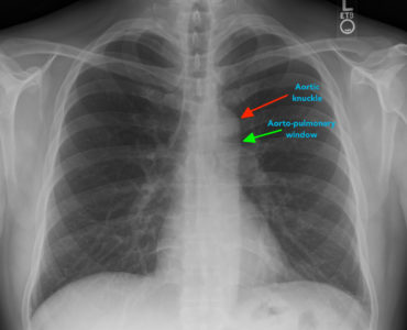 Illustration of Explanation Of The Results Of The Chest X-ray Examination?